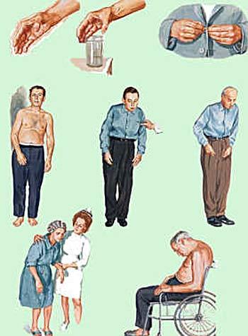 Болезнь паркинсона как лечить в домашних условиях